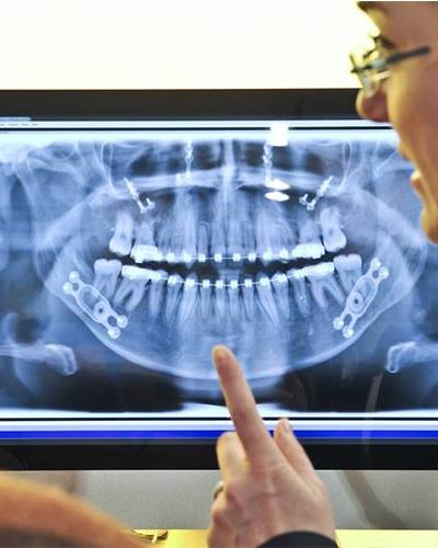 [科隆牙科展]2021德国科隆国际牙科展报名观展行程(一):科隆IDS纯观展